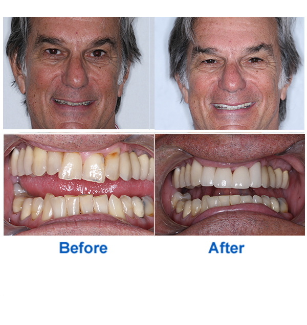 Smile Makeover Before and After Photos