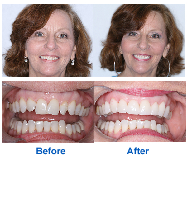 Teeth Makeover Before and After Photos