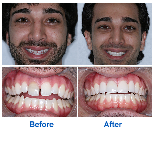 Smile Makeover at Coral Gables Dentistry