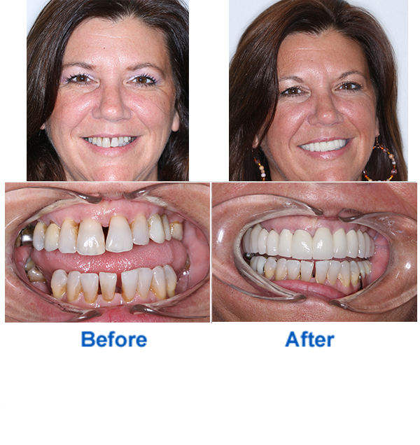 Teeth Whitening Before & After Photos