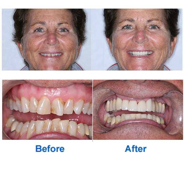Dental Makeover Before & After Photos