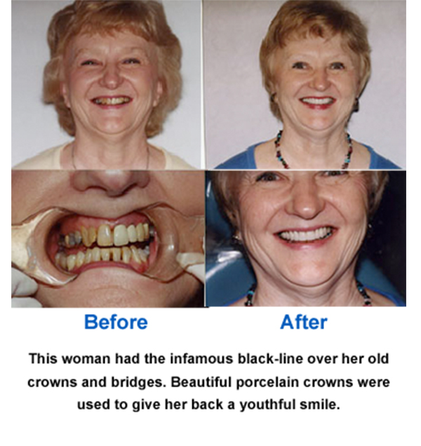 Porcelain Crowns Before and After Photo
