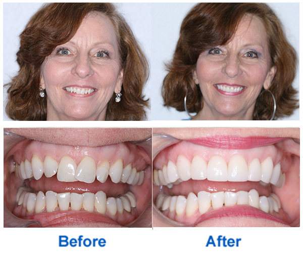 Porcelain Veneers in Coral Gables, FL