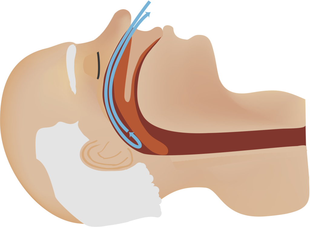 Sleep Apnea Treatment in Coral Gables, FL