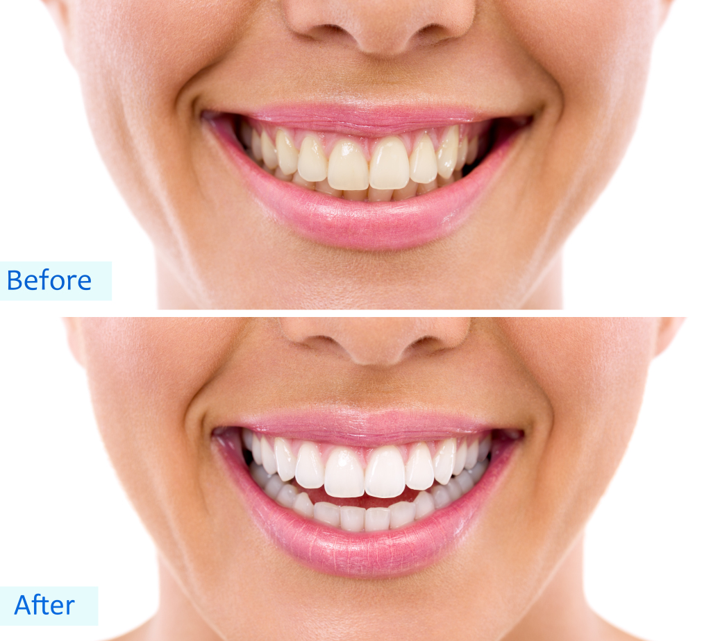 Teeth Whitening in Coral Gables | Dental Bleaching