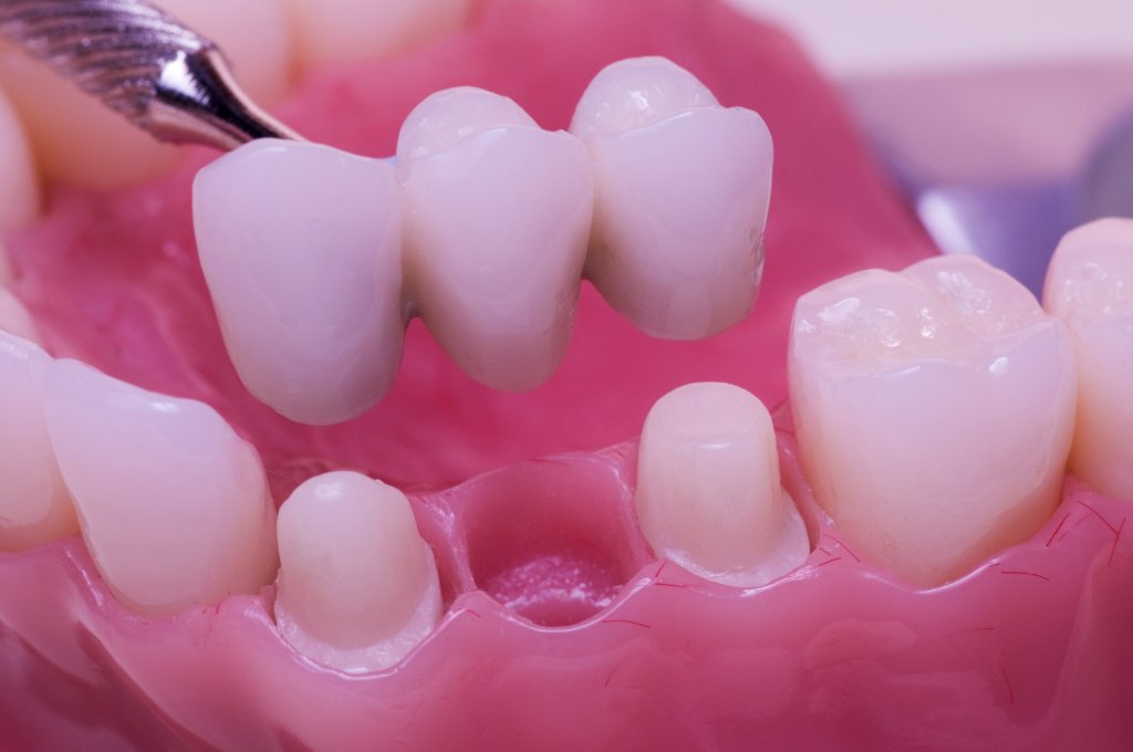 Dental Bridge at Coral Gables Dentistry