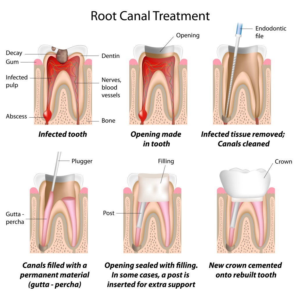 Root Canals Treatment in Coral Gables, FL
