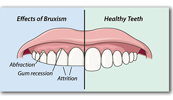 Effects of Bruxism or teeth grinding
