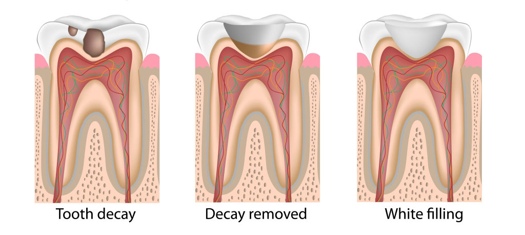 Tooth Restoration at Coral Gables Dentistry