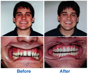 Before & After smile of dental bonding patient shows dramatic improvement.