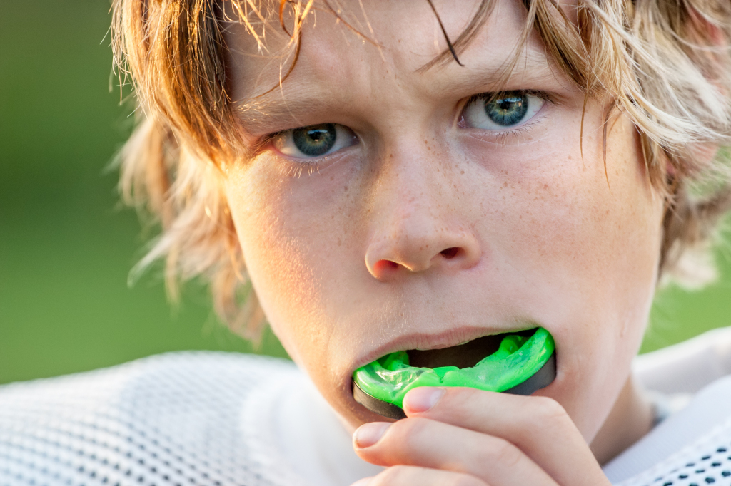 Sports Mouthguards at Coral Gables Dentistry
