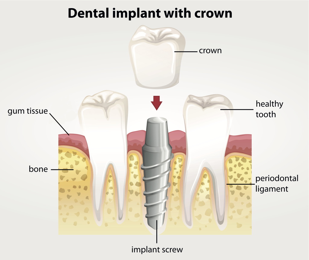 Dental Implants at Coral Gables Dentistry