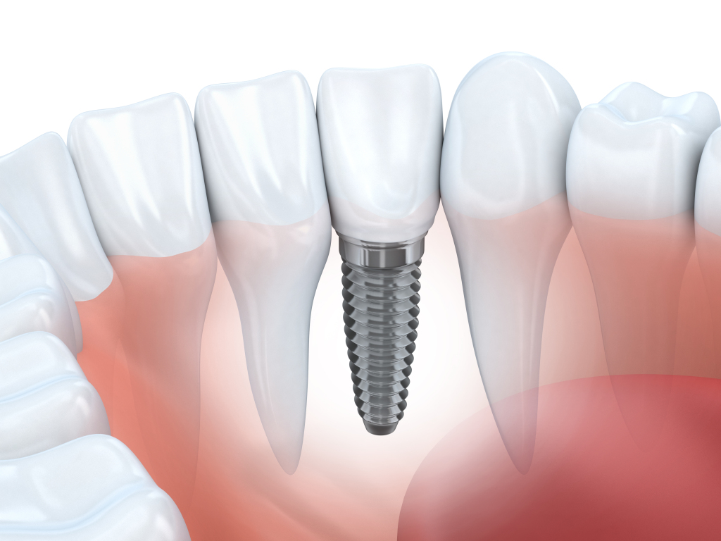 Implant Restoration in Coral Gables, FL